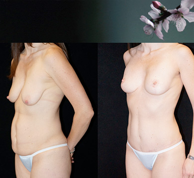 Fat Transfer to Breast for Lift, Tummy Tuck