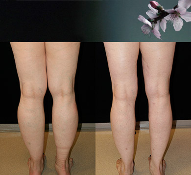 Leg Liposuction