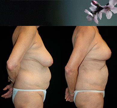 Liposuction of Hips & Abdomen & Breast Reduction