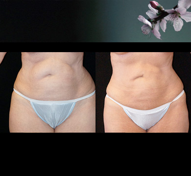 Liposuction of Abdomen & Hips