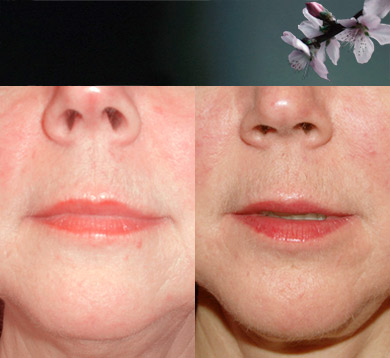 Lipostructure-lip-chin-20