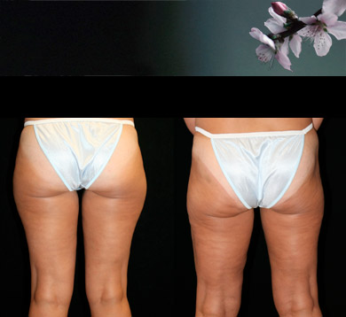 Liposuction-lateral-thigh-1
