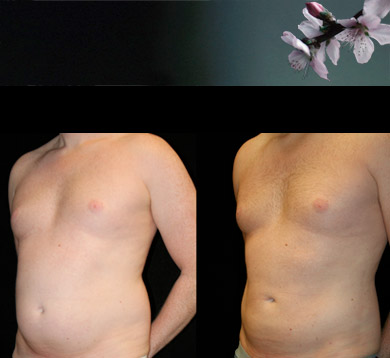 Liposuction-trunk-male