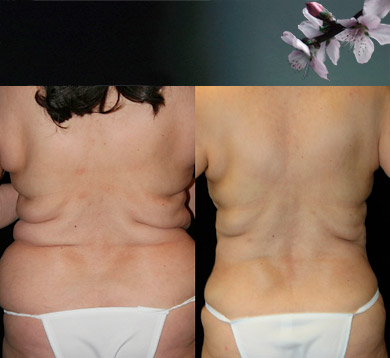 Liposuction-trunk-2
