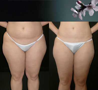 Liposuction-trunk-thigh-3