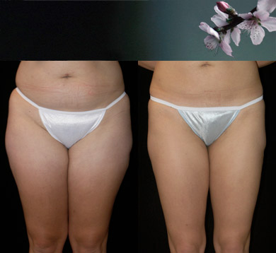 Liposuction-trunk-thigh-4