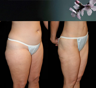 Liposuction-trunk-thigh
