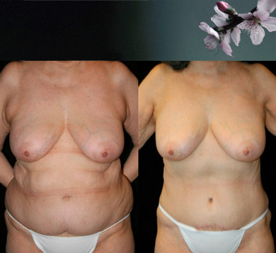 Liposuction-trunk
