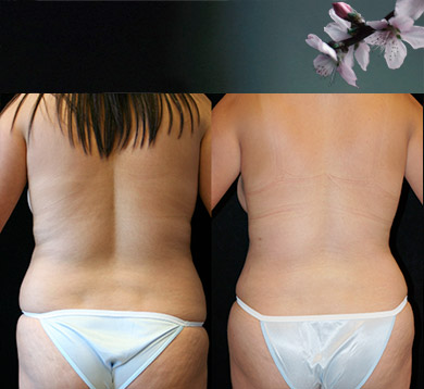 Lower Body Liposuction