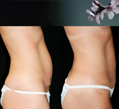 Mini-abdominoplasty-3
