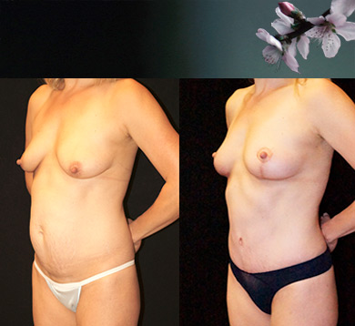 Mommy Makeover and Fat Transfer to Breasts