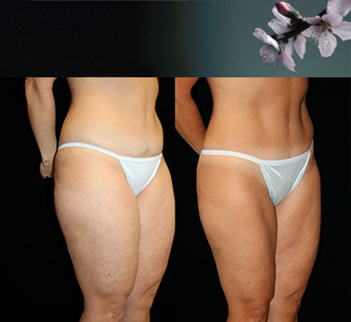Tummy Tuck, Liposuction of Thighs & Hips
