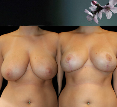 Vertical-Breast-Reduction-2