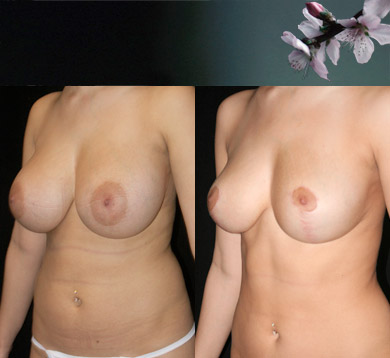 Vertical-breast-reduction