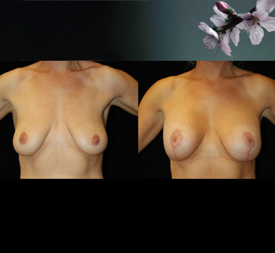 breast-augmentation-lift