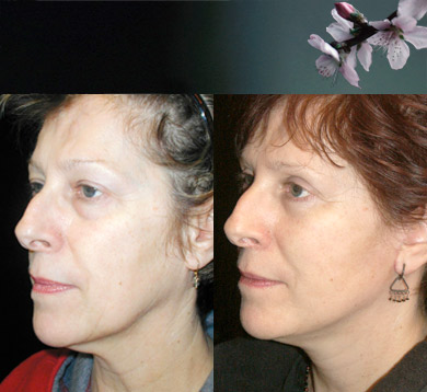 facelift-blepharoplasty-15