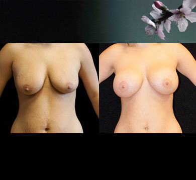 Breast Lift & Augmentation