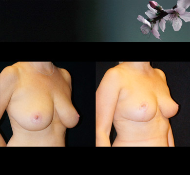 Vertical Breast Reduction