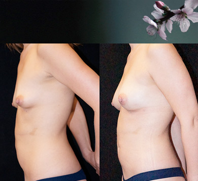 Side view of fat transfer to breast procedure