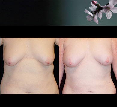 Fat Transfer to Breasts