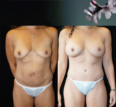 Breast Aug, Tummy Tuck & Lipo Hips & Thighs