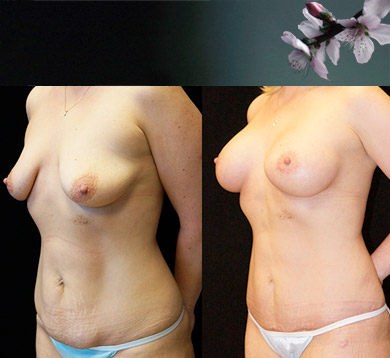 Breast Augmentation & Abdominoplasty