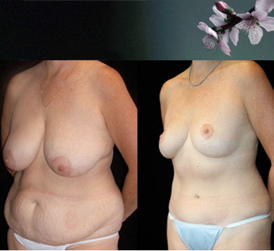 Lower Body Lift & Breast Lift