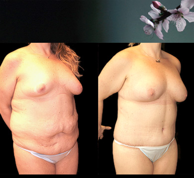Body Contouring & Fat Transfer to Breasts