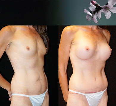 Massive Weight Loss Breast Aug + Tummy Tuck