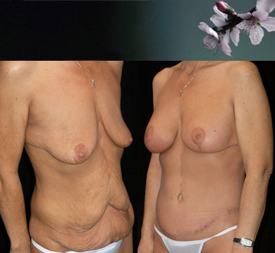 Weightloss Body Lift & Breast Augmentation