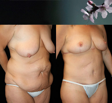 Weightloss Body Lift & Breast Lift