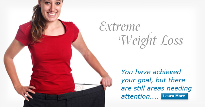 Massive Weight Loss - You have achieved your goal, but there are still areas needing attention...